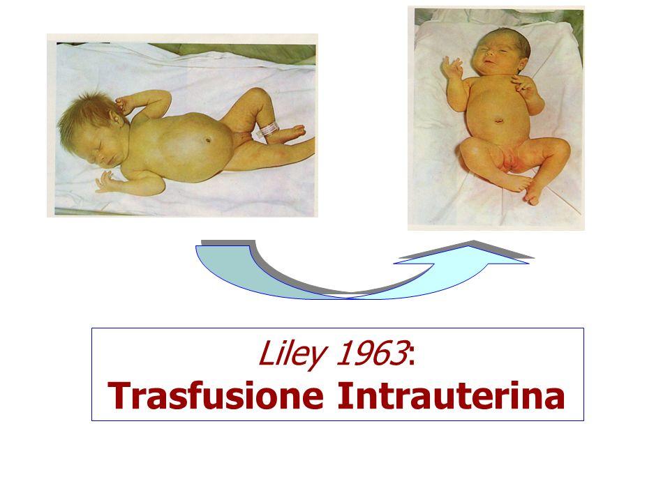 Trasfusione Intrauterina