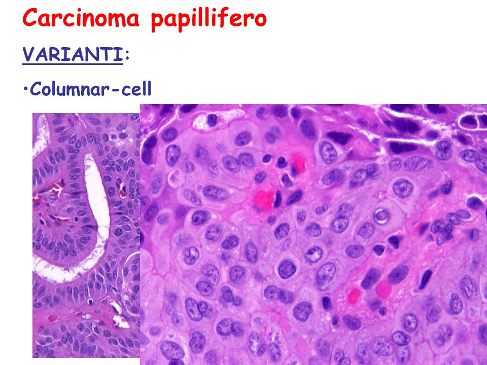 Carcinoma papillifero