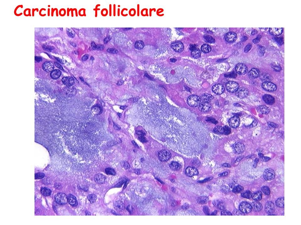 Carcinoma follicolare