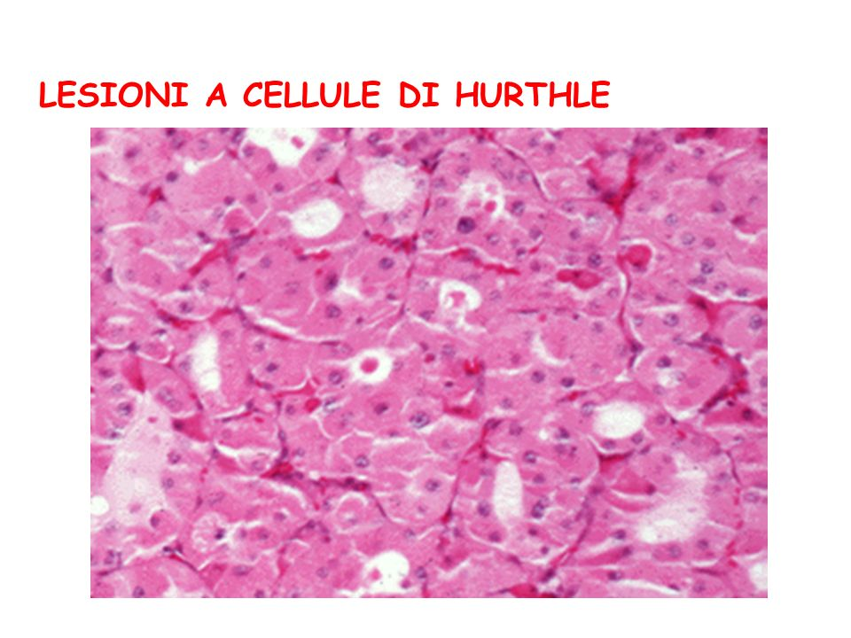 LESIONI A CELLULE DI HURTHLE