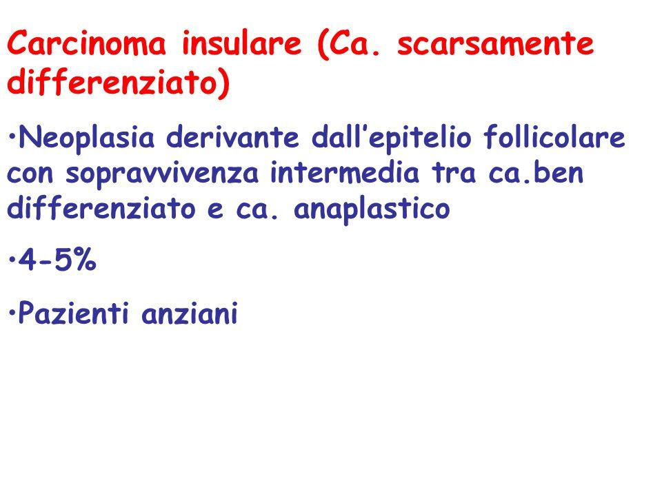Carcinoma insulare (Ca. scarsamente differenziato)