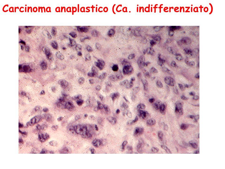 Carcinoma anaplastico (Ca. indifferenziato)