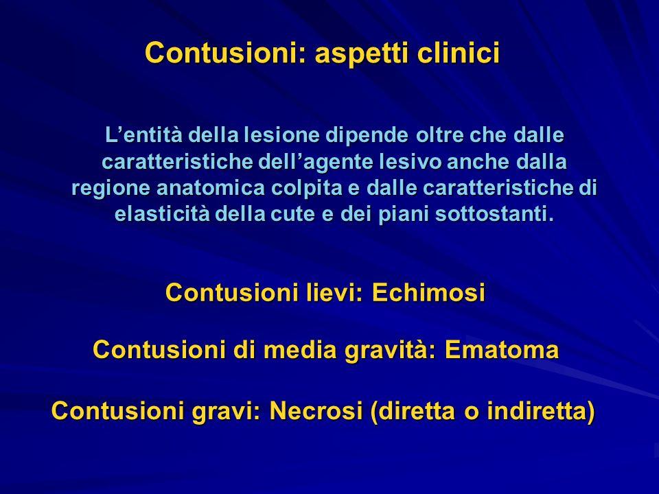 Contusioni: aspetti clinici