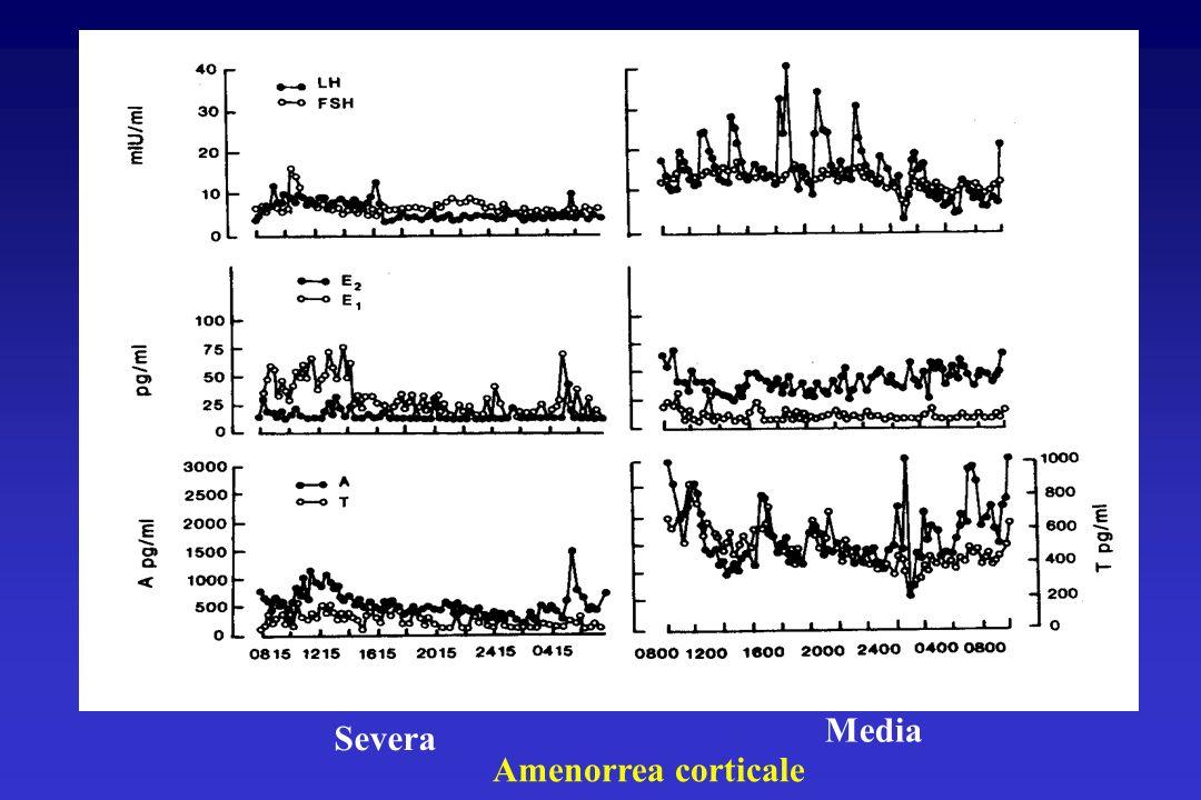 Media Severa Amenorrea corticale