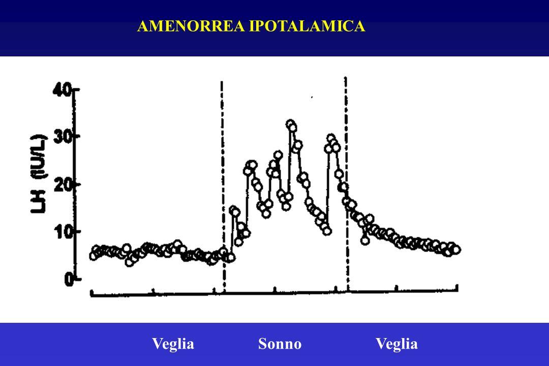 AMENORREA IPOTALAMICA