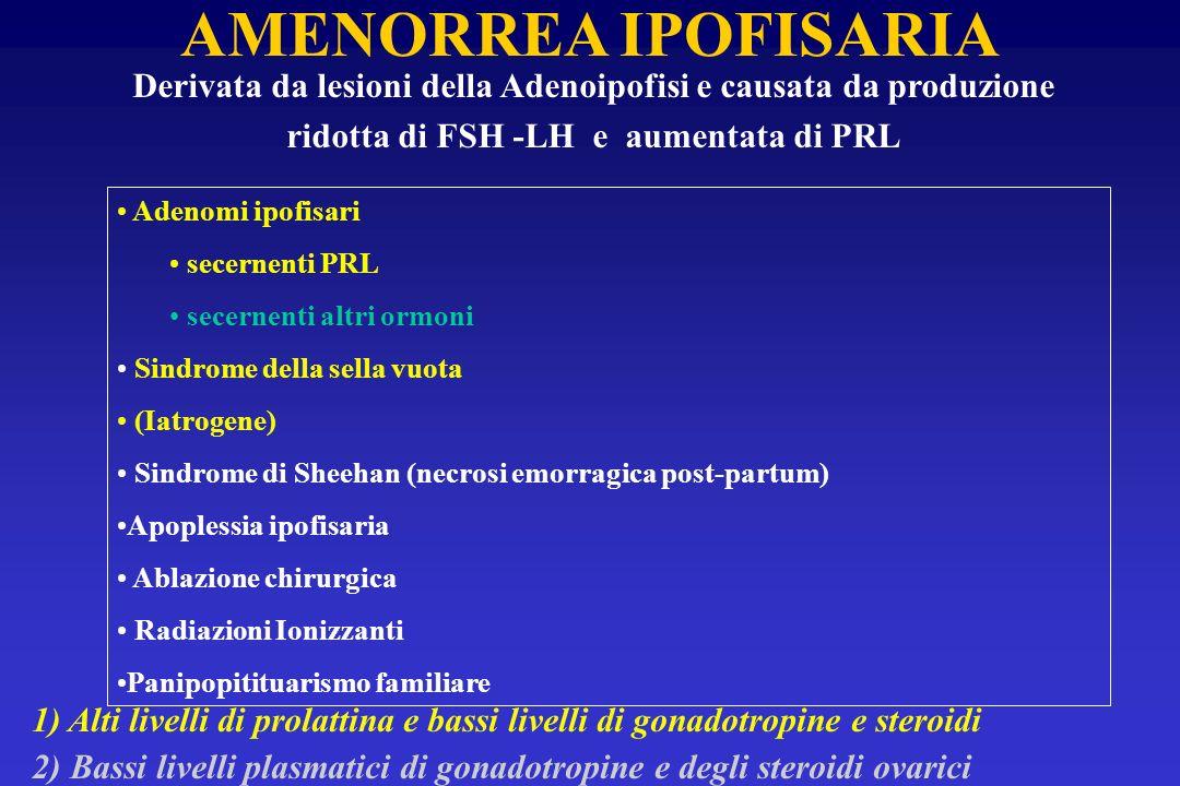 AMENORREA IPOFISARIA Derivata da lesioni della Adenoipofisi e causata da produzione. ridotta di FSH -LH e aumentata di PRL.