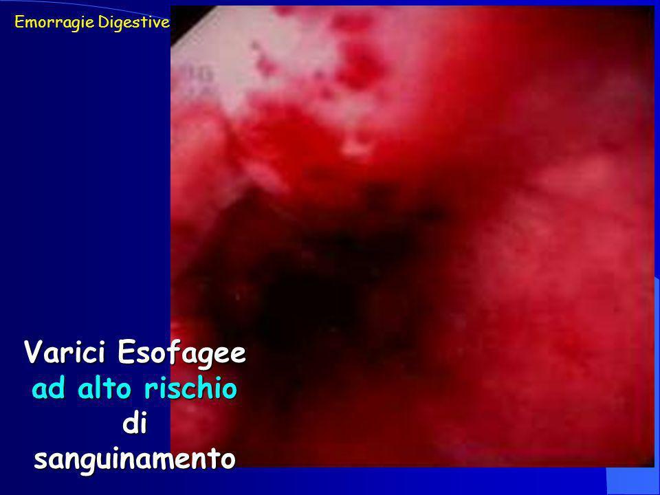 Varici Esofagee ad alto rischio di sanguinamento