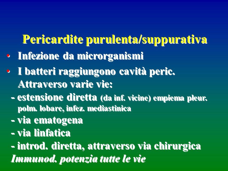 Pericardite purulenta/suppurativa