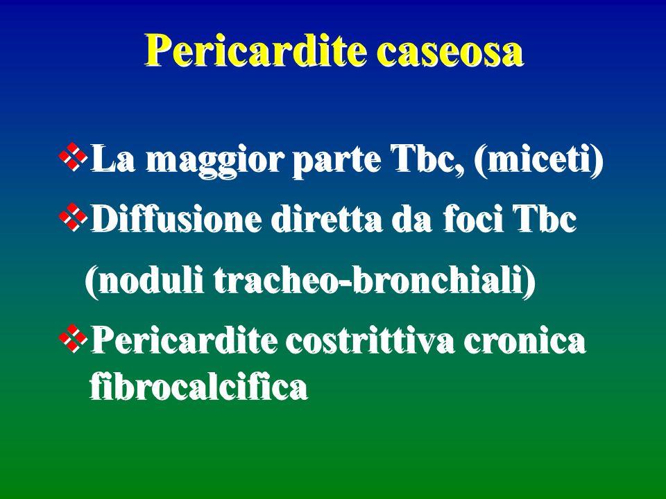 Pericardite caseosa La maggior parte Tbc, (miceti)