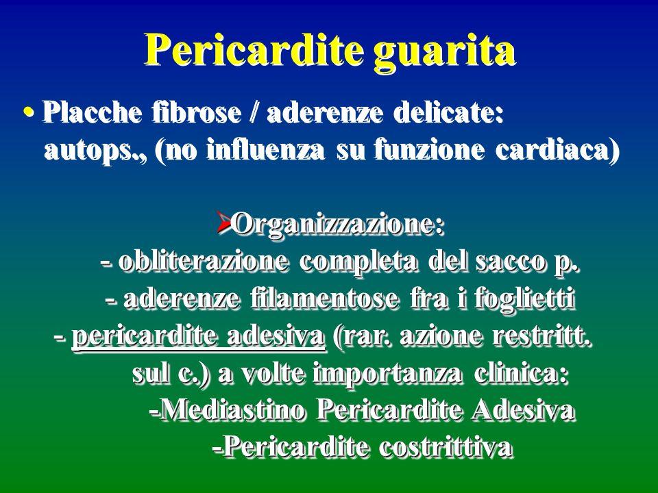 Pericardite guarita • Placche fibrose / aderenze delicate: autops., (no influenza su funzione cardiaca)