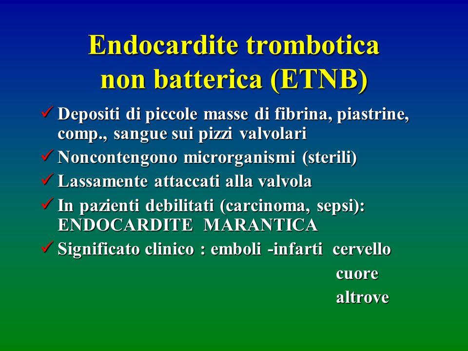 Endocardite trombotica non batterica (ETNB)