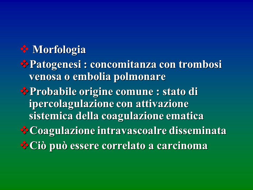 Morfologia Patogenesi : concomitanza con trombosi venosa o embolia polmonare.