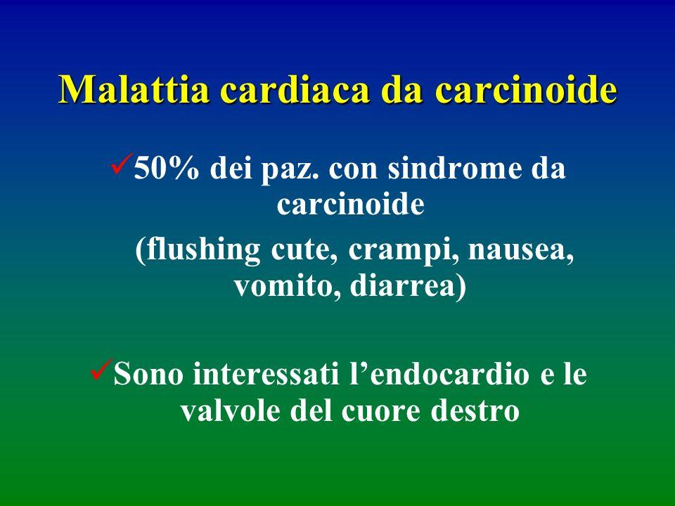 Malattia cardiaca da carcinoide