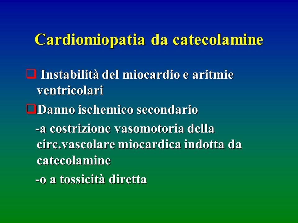 Cardiomiopatia da catecolamine