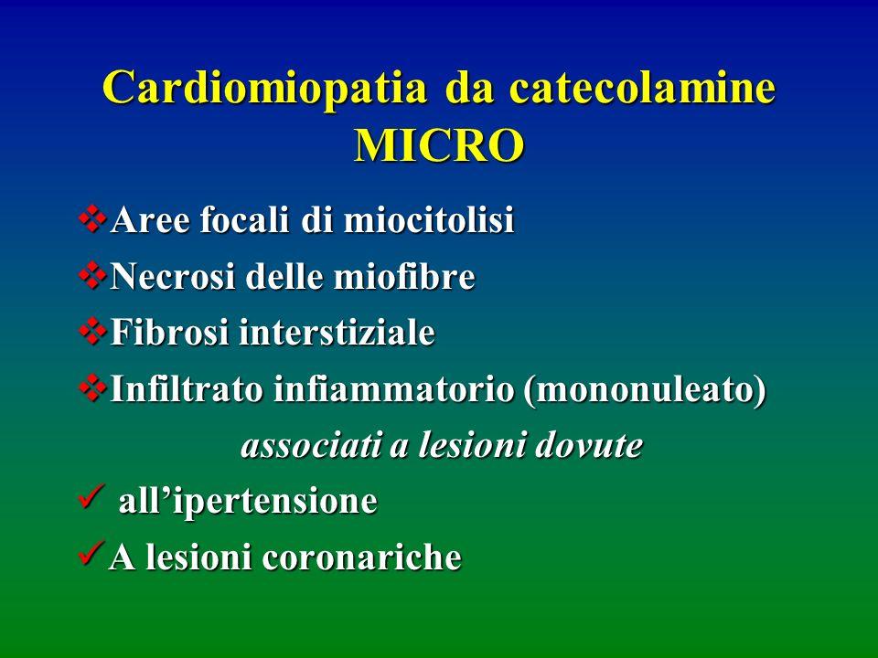 Cardiomiopatia da catecolamine MICRO