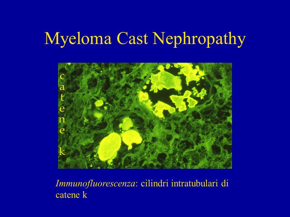 Myeloma Cast Nephropathy