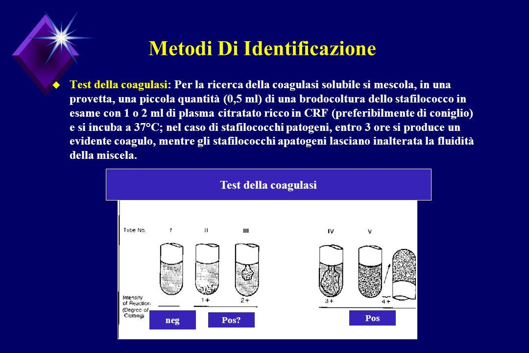 Metodi Di Identificazione