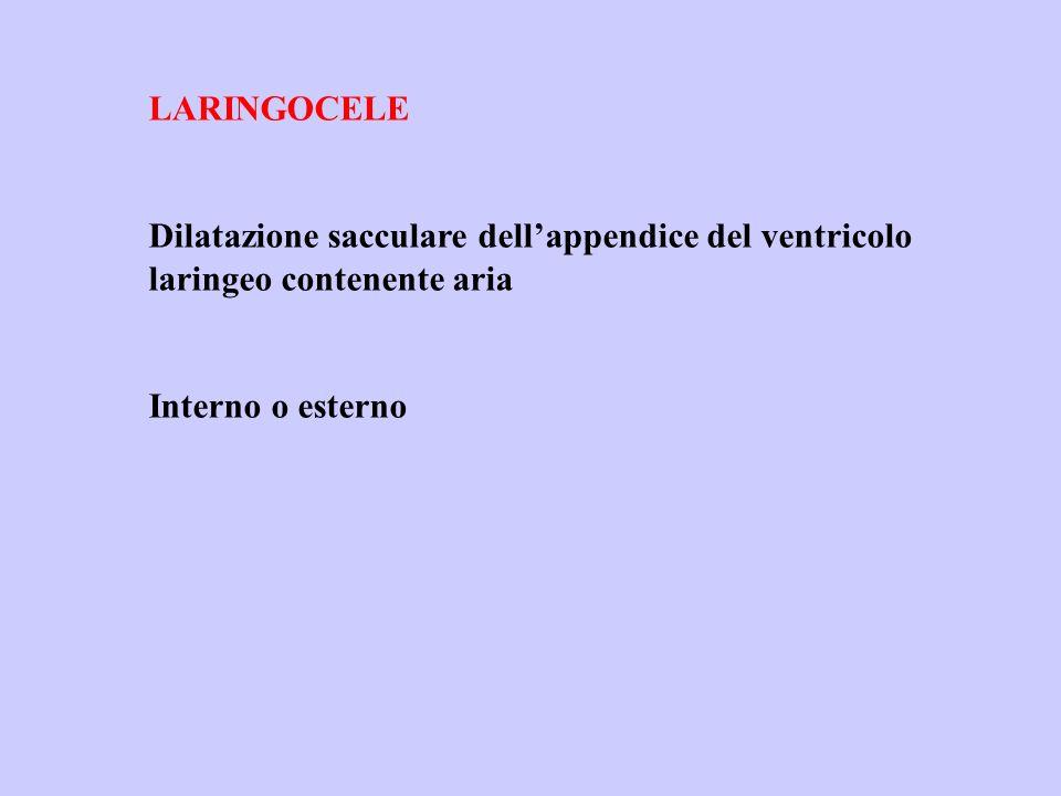 LARINGOCELE Dilatazione sacculare dell'appendice del ventricolo laringeo contenente aria.