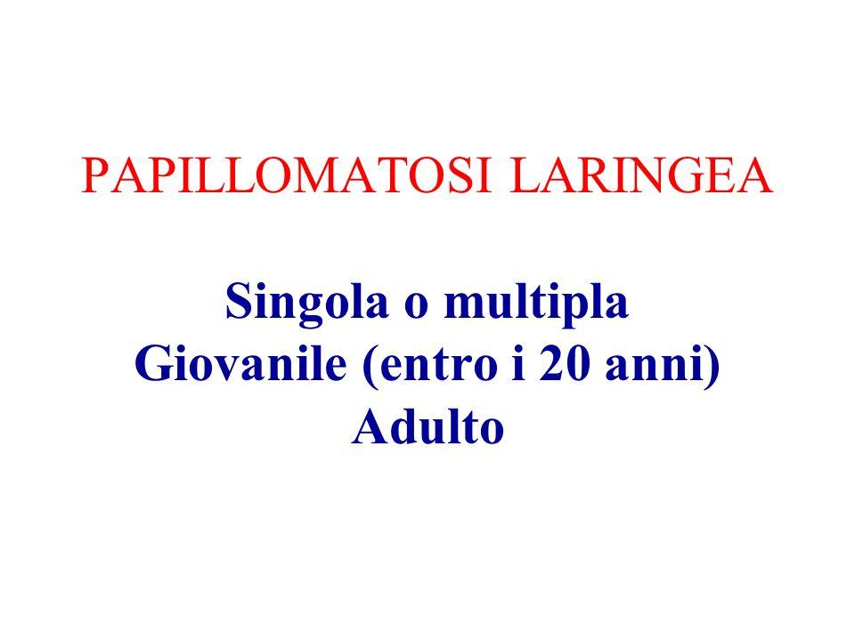 PAPILLOMATOSI LARINGEA Singola o multipla Giovanile (entro i 20 anni) Adulto