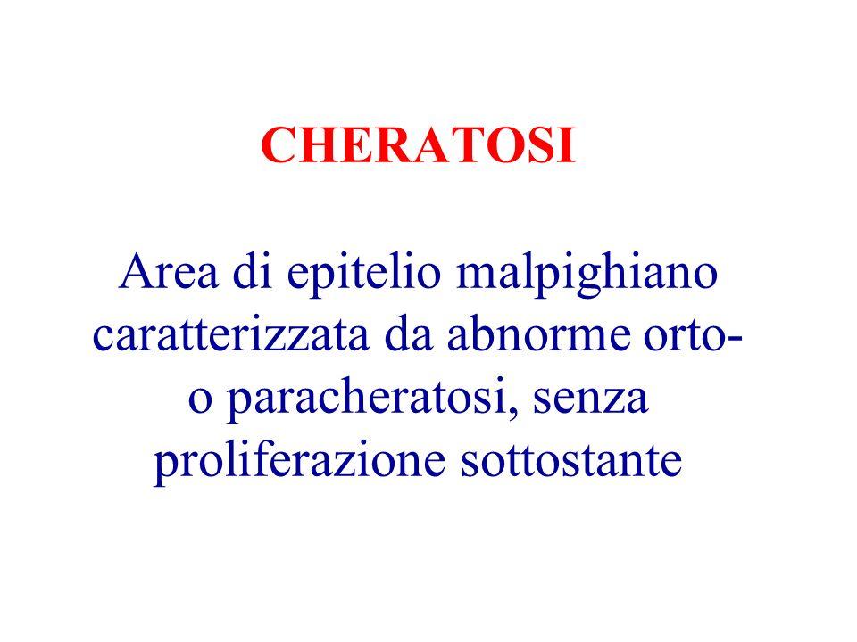 CHERATOSI Area di epitelio malpighiano caratterizzata da abnorme orto- o paracheratosi, senza proliferazione sottostante