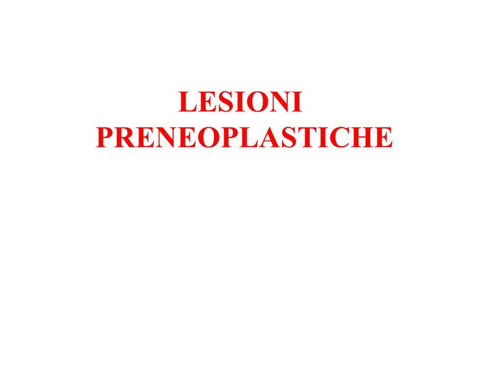 LESIONI PRENEOPLASTICHE