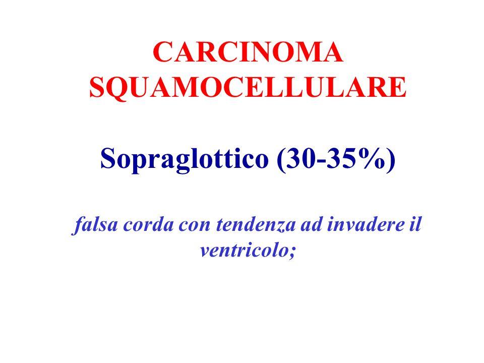 CARCINOMA SQUAMOCELLULARE Sopraglottico (30-35%) falsa corda con tendenza ad invadere il ventricolo;
