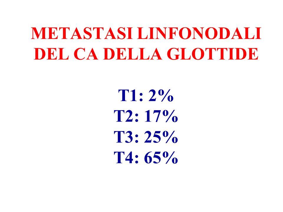METASTASI LINFONODALI DEL CA DELLA GLOTTIDE T1: 2% T2: 17% T3: 25% T4: 65%