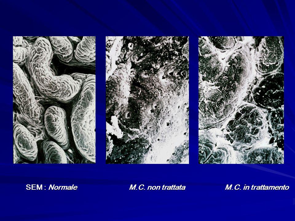 SEM : Normale M.C. non trattata M.C. in trattamento