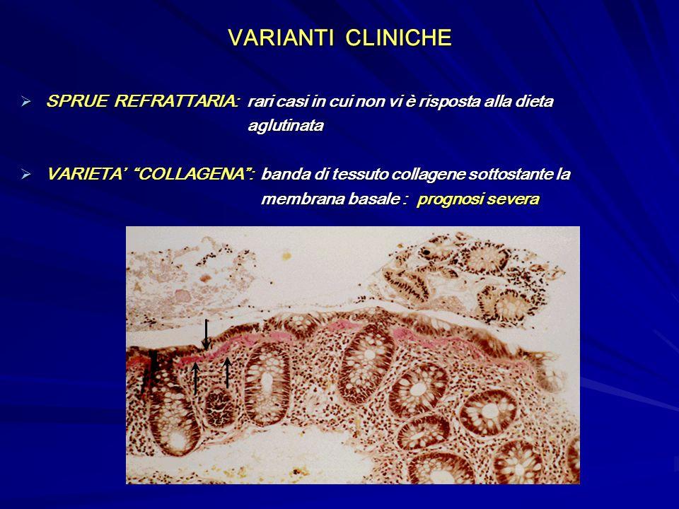 VARIANTI CLINICHE SPRUE REFRATTARIA: rari casi in cui non vi è risposta alla dieta. aglutinata.