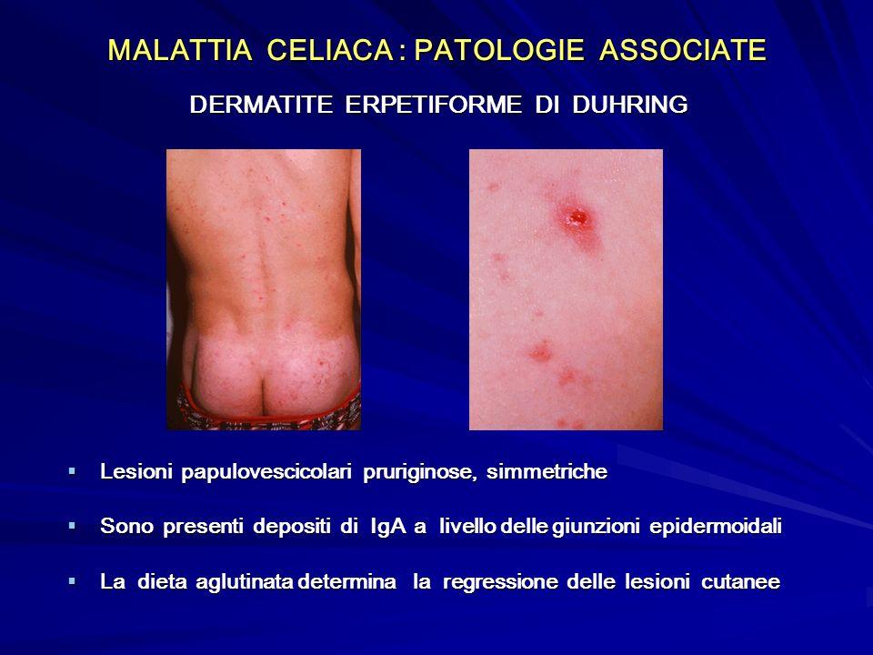 MALATTIA CELIACA : PATOLOGIE ASSOCIATE DERMATITE ERPETIFORME DI DUHRING