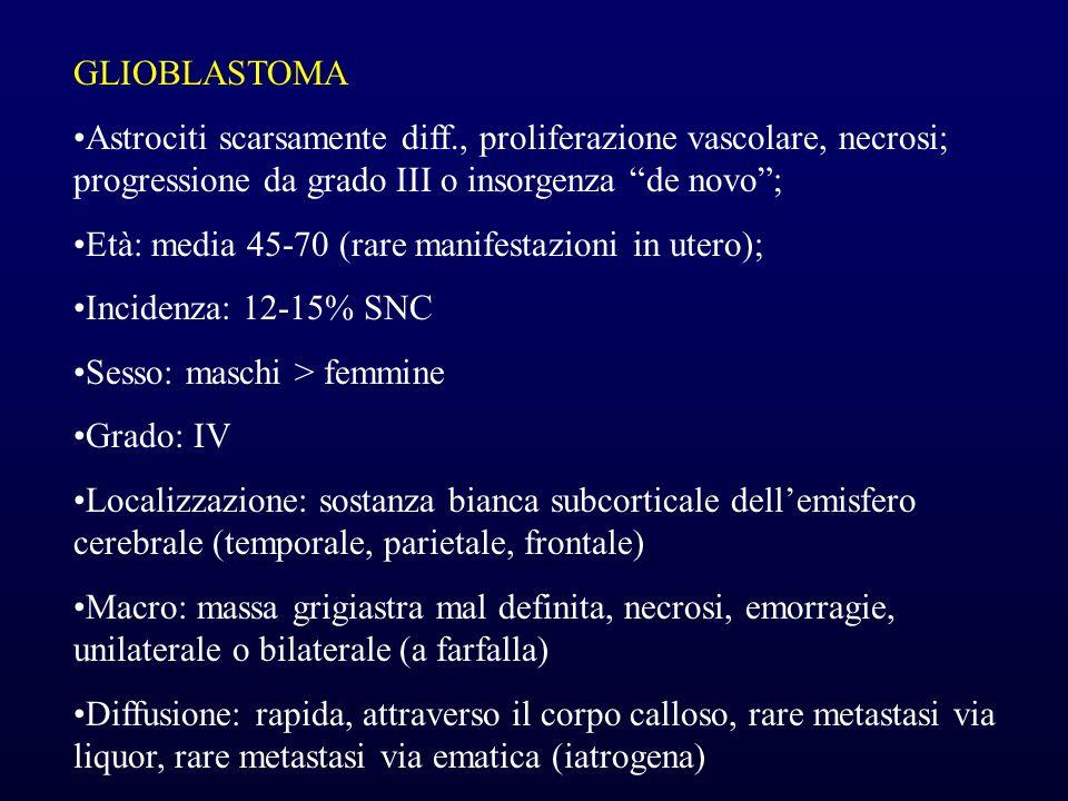 GLIOBLASTOMAAstrociti scarsamente diff., proliferazione vascolare, necrosi; progressione da grado III o insorgenza de novo ;