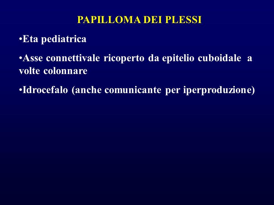 PAPILLOMA DEI PLESSI Eta pediatrica. Asse connettivale ricoperto da epitelio cuboidale a volte colonnare.