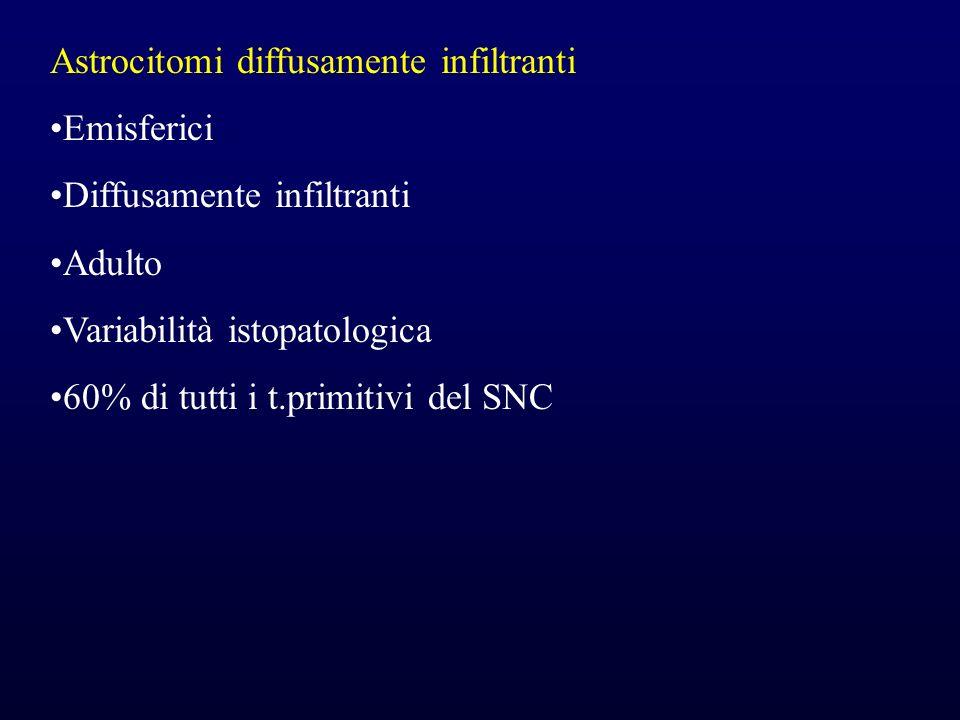 Astrocitomi diffusamente infiltranti