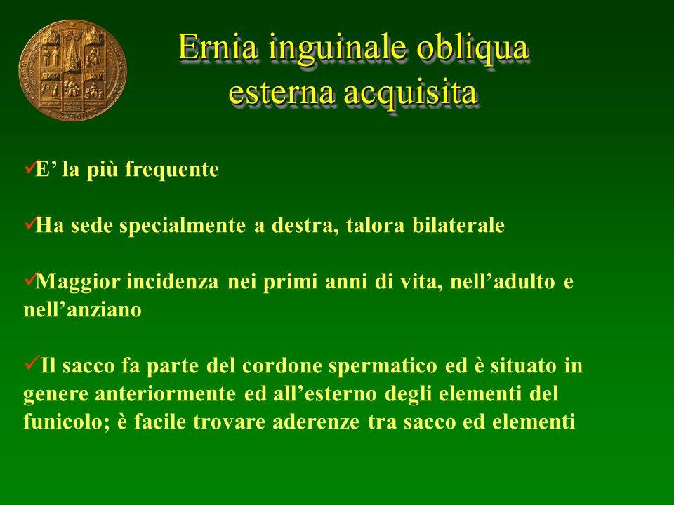 Ernia inguinale obliqua
