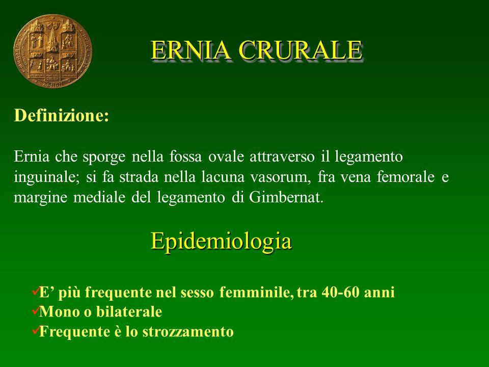 ERNIA CRURALE Epidemiologia Definizione: