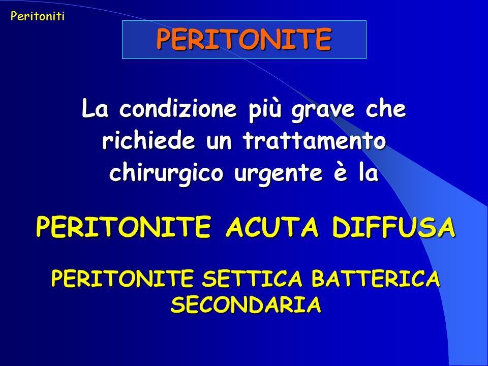 PERITONITE ACUTA DIFFUSA PERITONITE SETTICA BATTERICA SECONDARIA