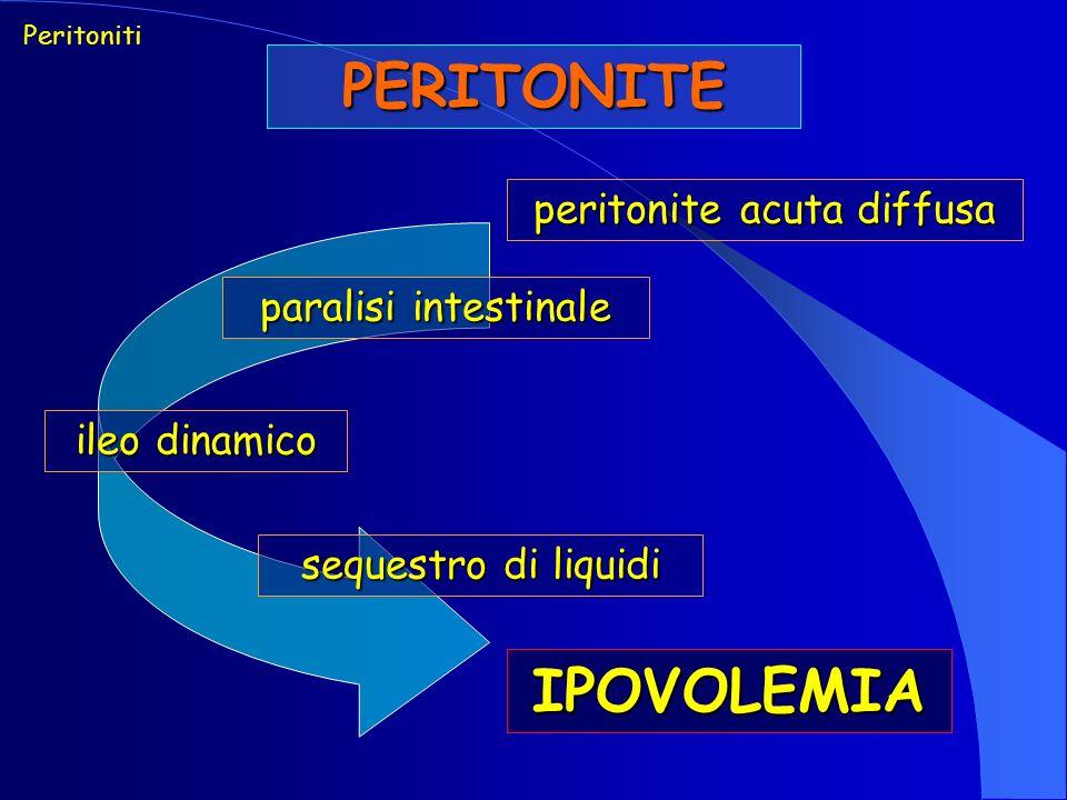 peritonite acuta diffusa