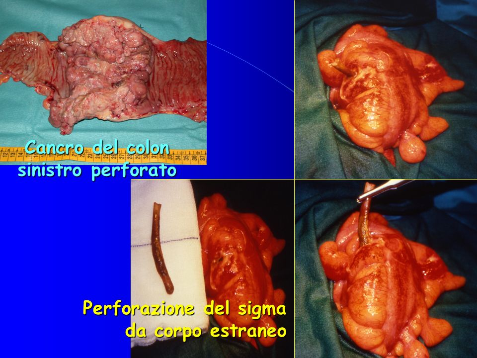 Cancro del colon sinistro perforato