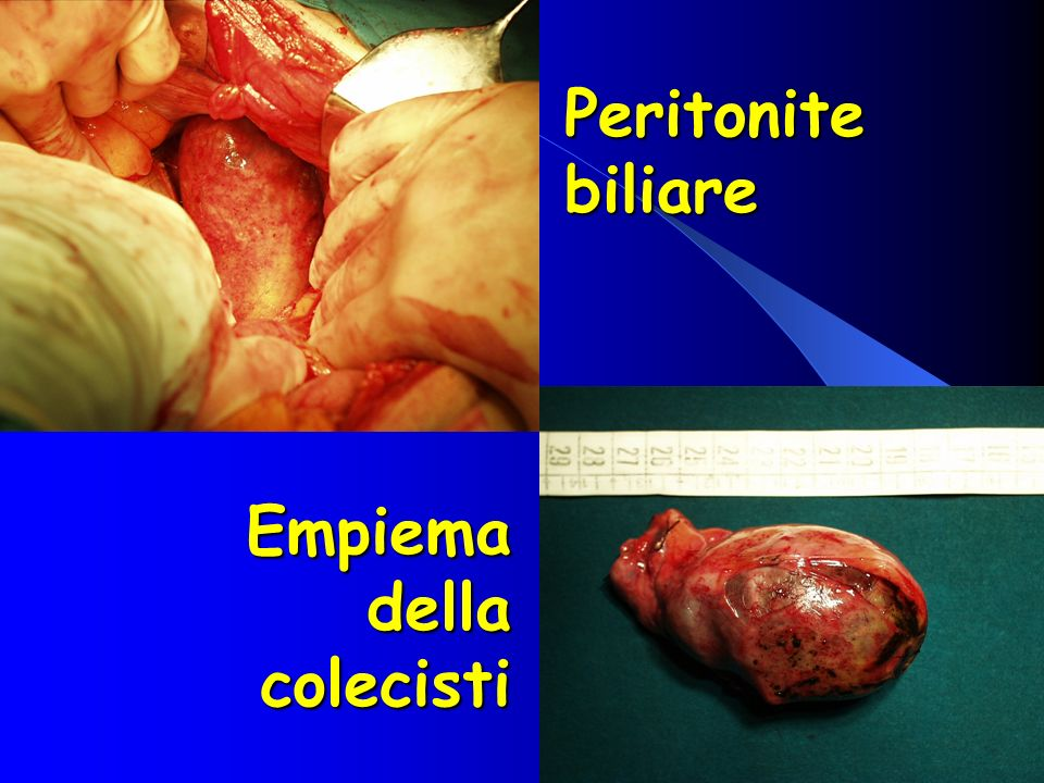 Peritonite biliare Empiema della colecisti