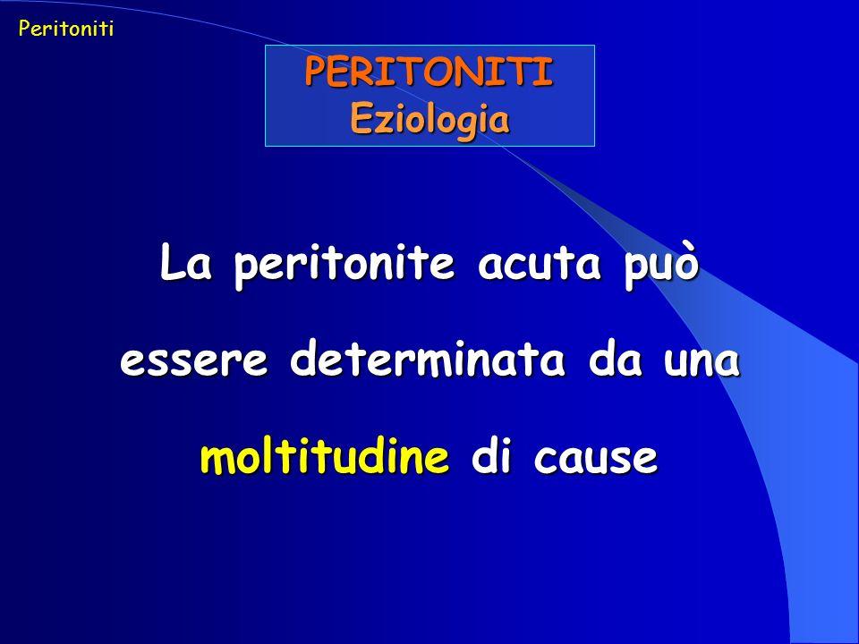 La peritonite acuta può essere determinata da una moltitudine di cause