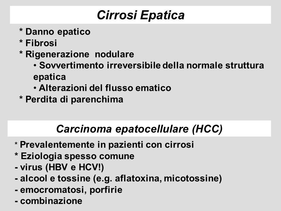 Carcinoma epatocellulare (HCC)