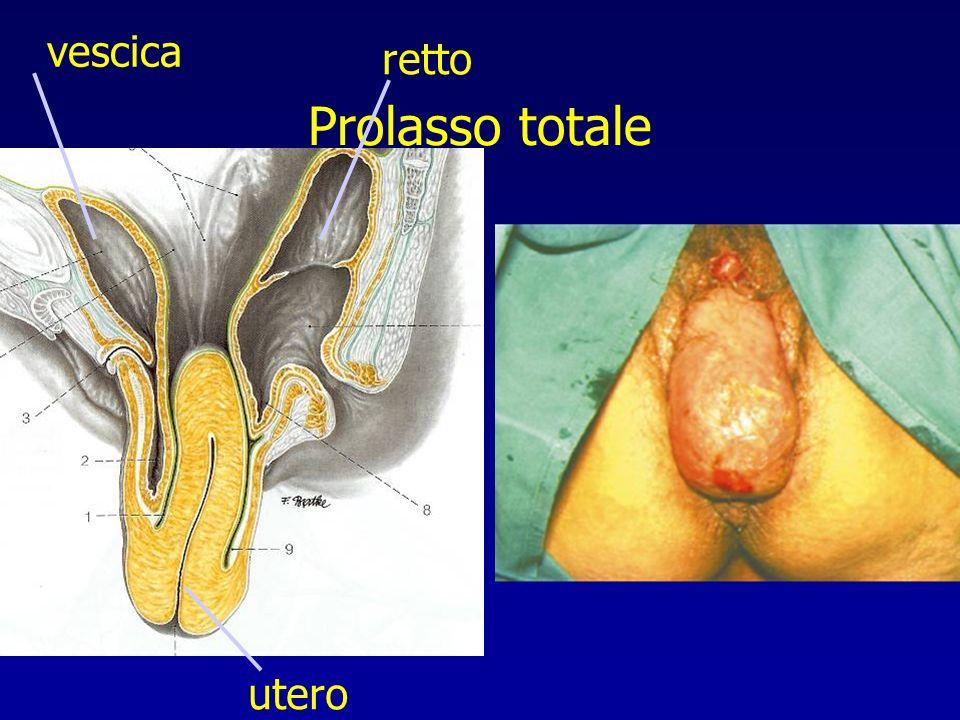 vescica retto Prolasso totale utero