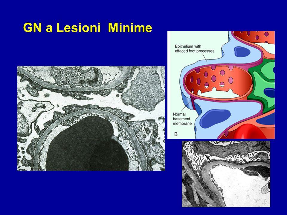 GN a Lesioni Minime