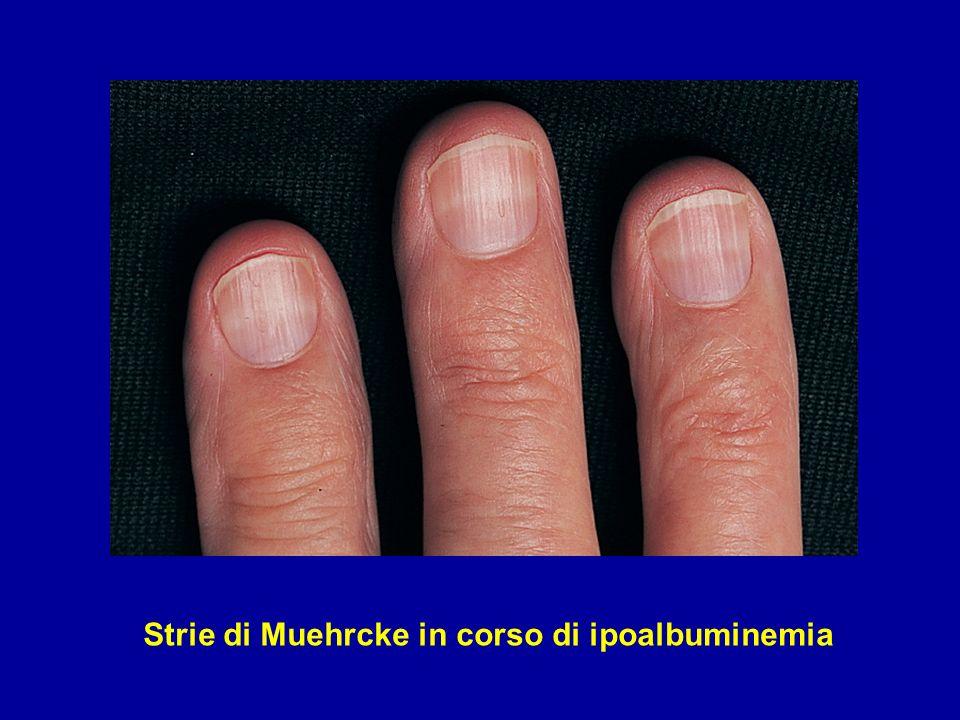 Strie di Muehrcke in corso di ipoalbuminemia