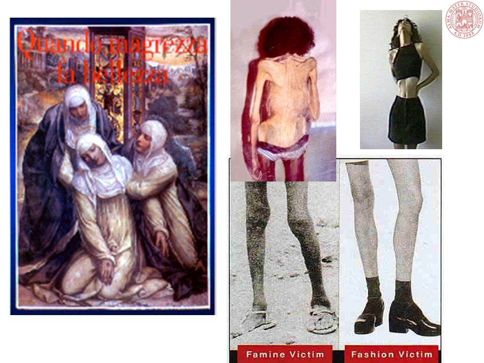 Nella cultura occidentale le prime descrizioni cliniche di anomalie dell'alimentazione risalgono a più di 2000 anni fa. Alcune sante cristiane avevano un comportamento simile alle anoressiche.