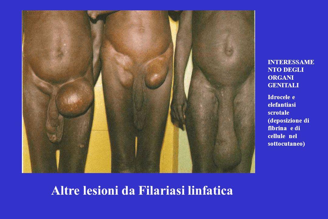 Altre lesioni da Filariasi linfatica
