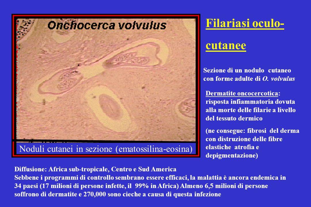 Noduli cutanei in sezione (ematossilina-eosina)