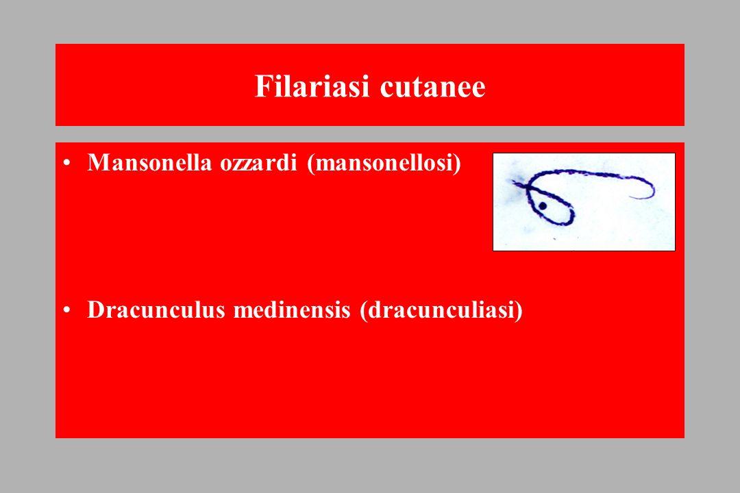 Filariasi cutanee Mansonella ozzardi (mansonellosi)