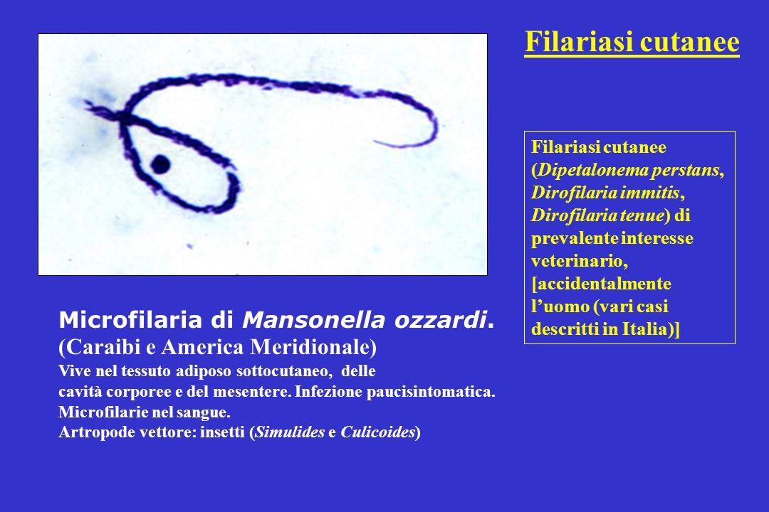 Filariasi cutanee Microfilaria di Mansonella ozzardi.
