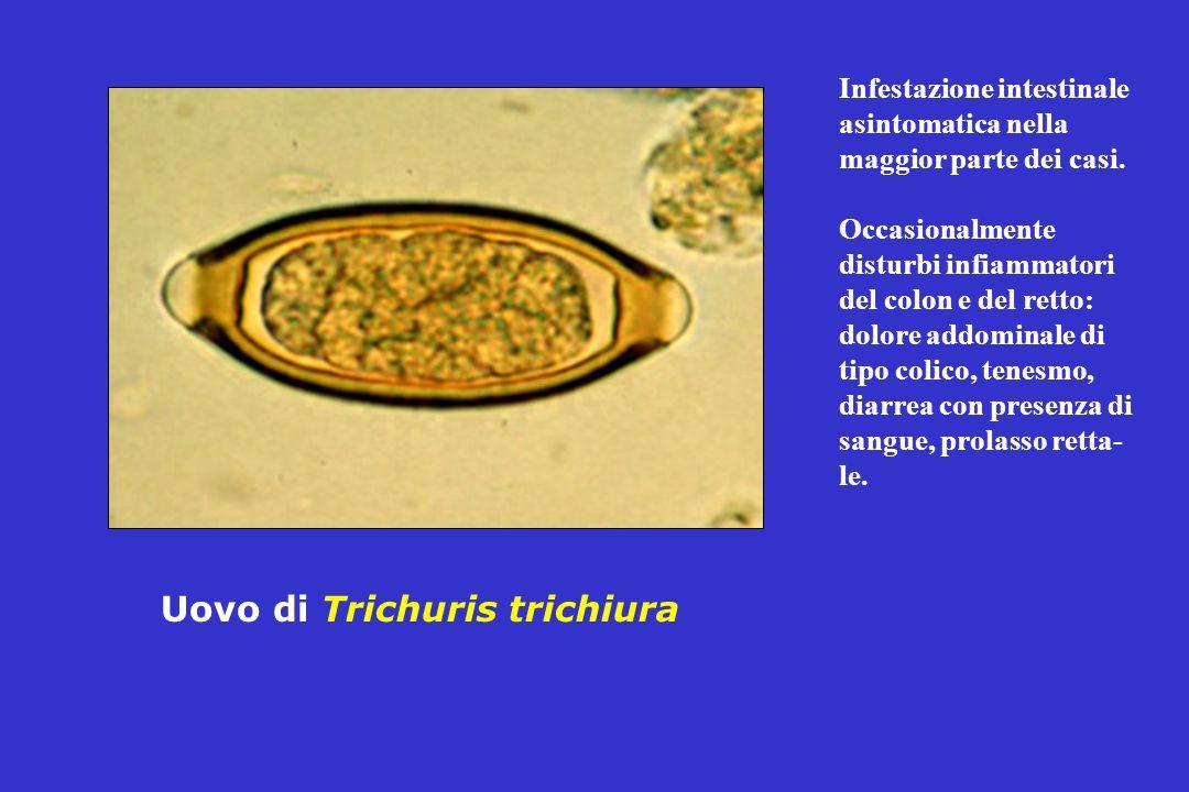 Uovo di Trichuris trichiura